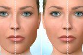 Çene Estetik Ameliyatı Nasıl Yapılır ?