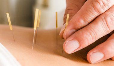 Akupunktur İle Nasıl Zayıflanır