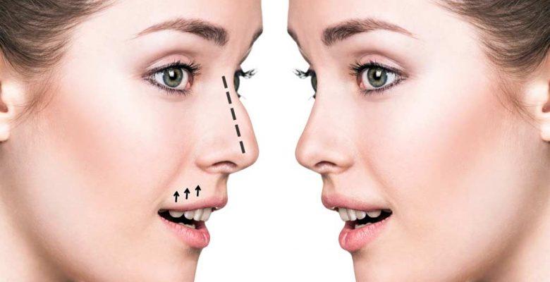 Burun estetik ameliyatların incelikleri