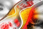 Kan ve Kolestrol Düzeylerini Etkileyen Risk Faktörleri